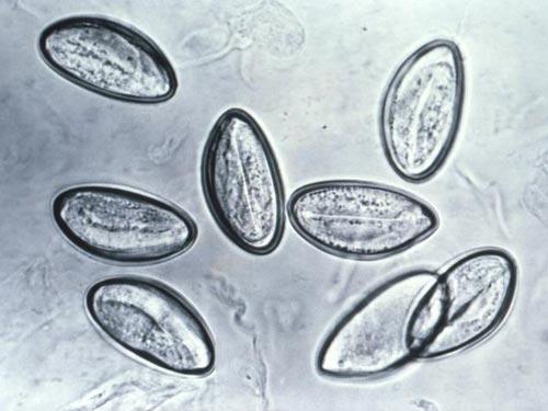 人体十大寄生虫:弓形虫会侵袭中枢神经系统(2)