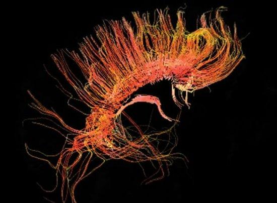 脊椎管和大脑处的明亮区域表示脑脊髓液。