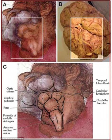 怪异的上帝脖子(A)与人脑照片(B)完美匹配。通过图片C,我们可以清楚地看到隐藏在上帝脖子中的大脑不同部位。