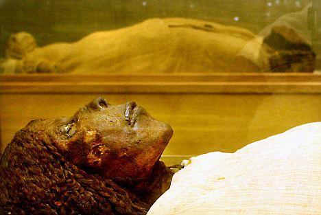 对木乃伊的大量研究中,除了一个单独案例之外,科学家未发现癌症痕迹。