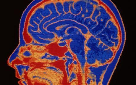 人脑横截面图像
