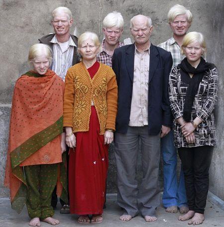 。普兰家的孩子24岁的山卡尔、19岁的拉姆吉山和25岁的维嘉耶(后排),以及女儿21岁的迪帕(左)和18岁的伯嘉(右)均遗传了父亲洛瑟塔里和母亲玛尼(中)的白化病
