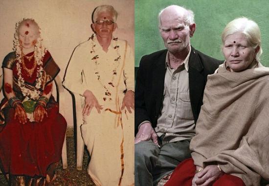 """洛瑟塔里和玛尼(左)1983年结婚,但是玛尼现在认为家人的白化病是""""上帝的礼物"""""""