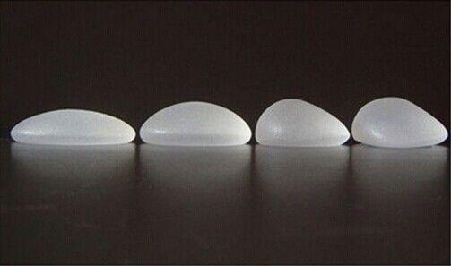 种形状的硅胶假体隆胸材料,内部多采用不具有流动性的硅凝胶作为填充物,因此即便外膜破裂也不会发生组织渗漏,另外毛面外膜、聚氨酯涂层外膜的出现减少了薄膜痉挛的发生率(图片来自:www.yuemei.com)
