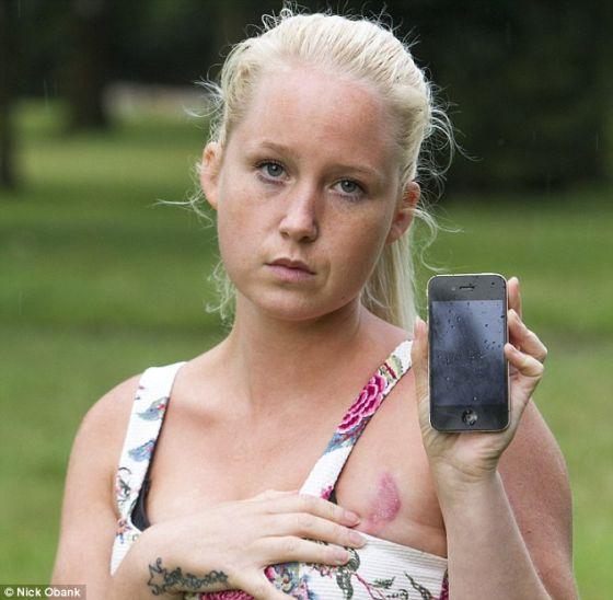 英国女子抱iPhone入睡 乳房被灼伤