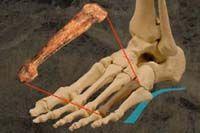 人类祖先320万年前已靠双脚行走