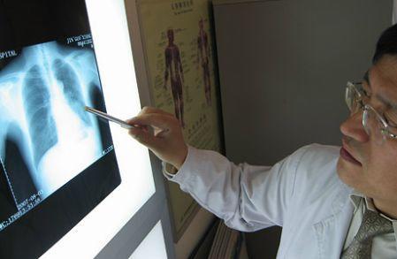 2007十大医学突破:肺癌早诊断变容易
