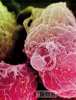 《新知客》:饿死艾滋病毒
