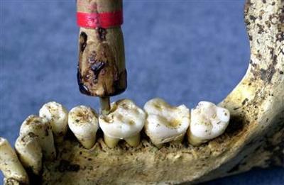 十大误认为现代发明的古代发明:整形手术