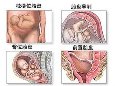 4种胎位图