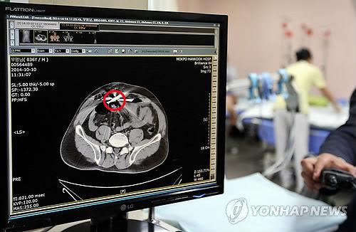 """10日,中国渔船""""鲁营渔50987号""""船长宋某遭韩国海警开枪,中弹身亡。图为宋某腹部CT照。(韩联社)"""