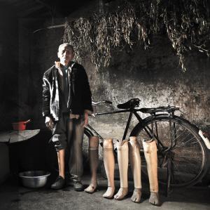 图为王咪义,70岁,1984年触雷失去右腿后,假肢一直陪伴着他 杨赋 记者 杨帆 摄影报道
