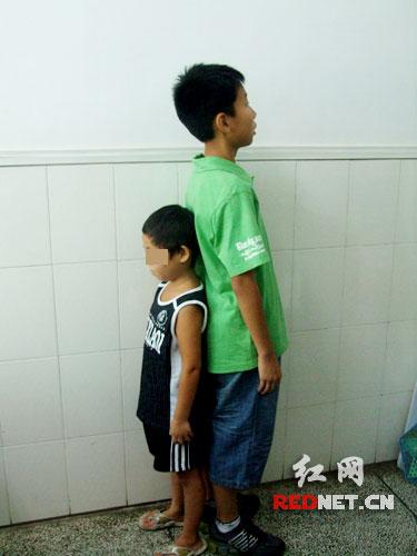 儿童身高迟缓怎么办
