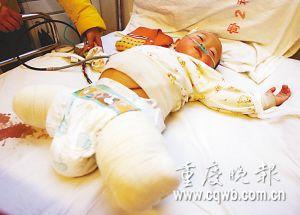 老汉将1岁女童塞进火车轮下致其双腿粉碎(图)