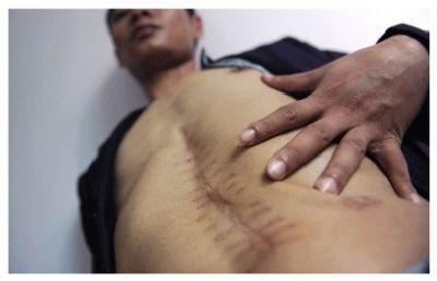 """9月24日,湖南岳阳,刘勇手术后""""少了一个肾脏"""",腹部留下了长长的伤疤。图/记者张轶"""