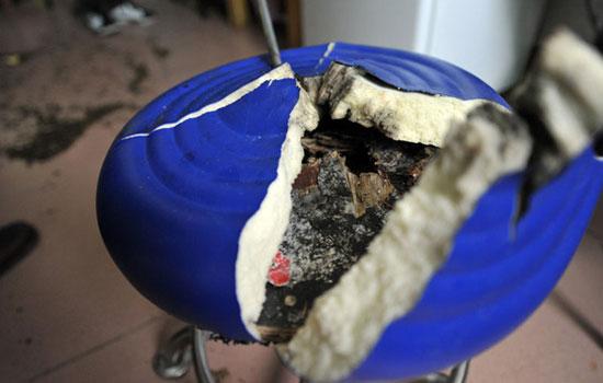 座椅爆炸致女子被炸伤大量碎片嵌入身体(组图)