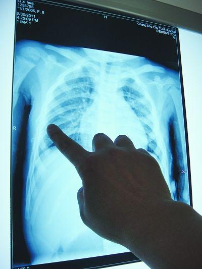 胸部7根肋骨骨折。