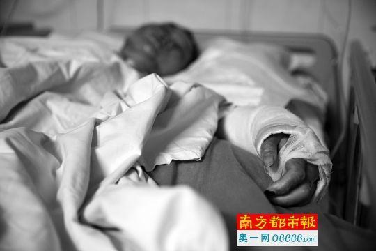 昨天,灼烁公民病院,被烧伤的薛密斯仍未离开性命风险。南都记者 陈文才 摄