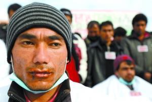1月5日,雅典,一阿富汗籍男子将嘴唇缝在一起。当天,6名阿富汗人缝唇绝食,要求希腊政府给予他们难民身份。