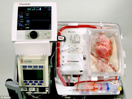器官保健系统使心脏在体外维持正常工作