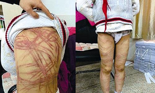 南京被虐待的男童
