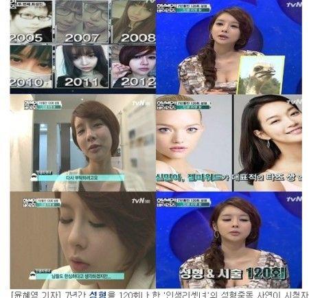 韩国一女子上节目自曝7年整形近120次