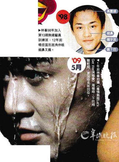 """林峰被曝借伤躲避媒体""""整形""""追问(图)"""