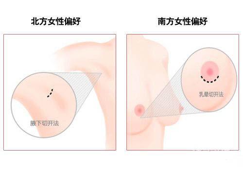 韩式隆胸新概念 水滴型胸部受追捧