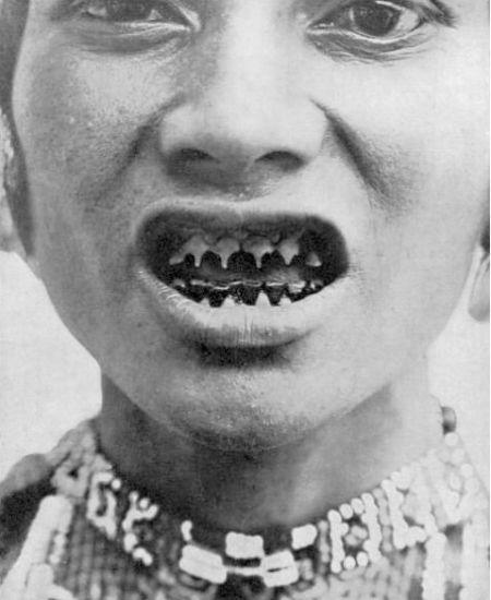 阿帕塔尼部落女人將大木塞塞進鼻子習俗