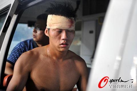 图文-重庆老将遭周海滨脚踩面部被救护车送往医院