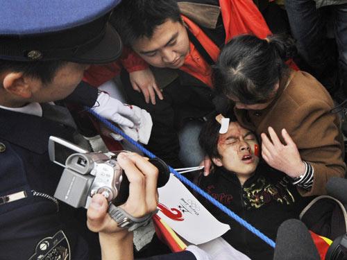 圣火传递,中国留学生被打 出血 日本---气愤!!